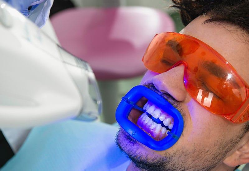 Zahn Laserbehandlung