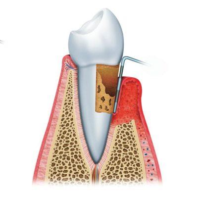 Zahnfleischentzuendung